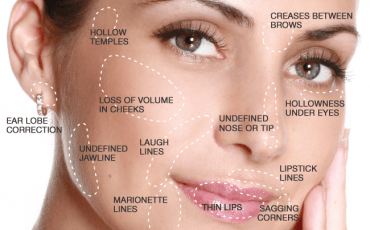 Types of  Facial Fillers